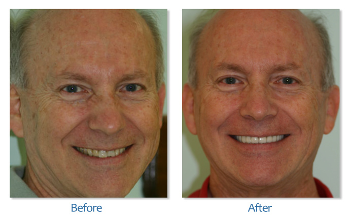 Dental Implants & Veneers
