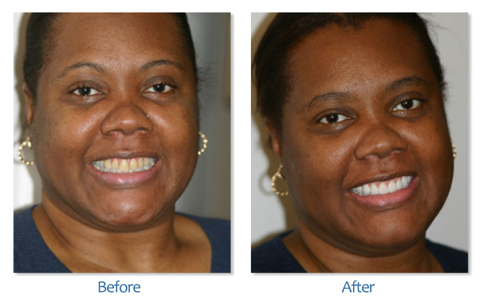 Full Smile Makeover